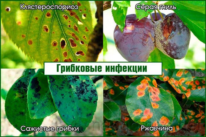 Разновидности грибковых инфекций